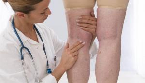 best specialist in varicose veins