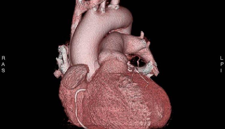 ps_170718_coronary_ct_angiography_800x600