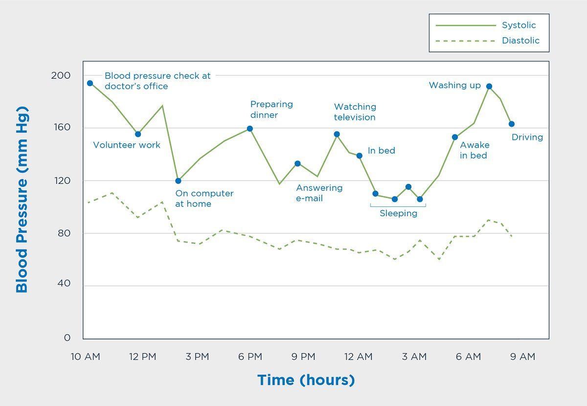 تغییرات فشار خون در 24 ساعت و فعالیت های مختلف