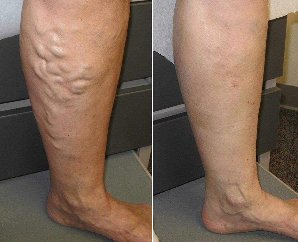 قبل و بعد از درمان واریس با لیزر