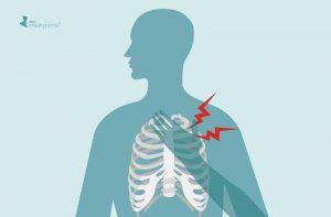 علت اسکلتی درد جناغ سینه