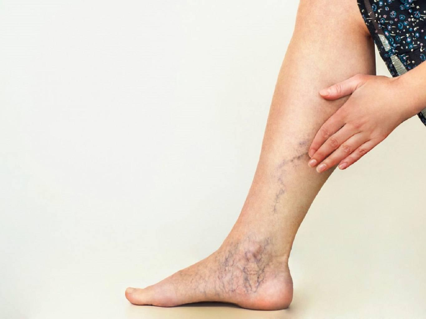 مراقبت های بعد از درمان واریس پا