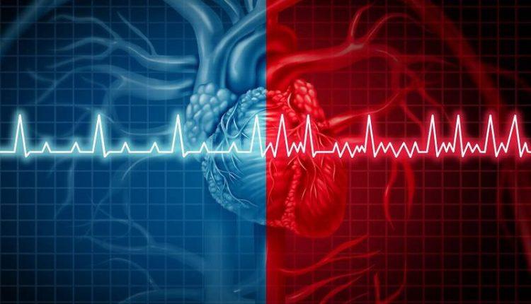 علت ضربان قلب بالا