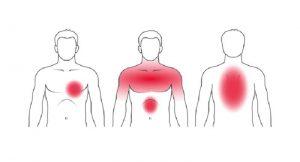 حمله ی قلبی می تواند هم در قفسه سینه درد ایجاد کند هم در پشت