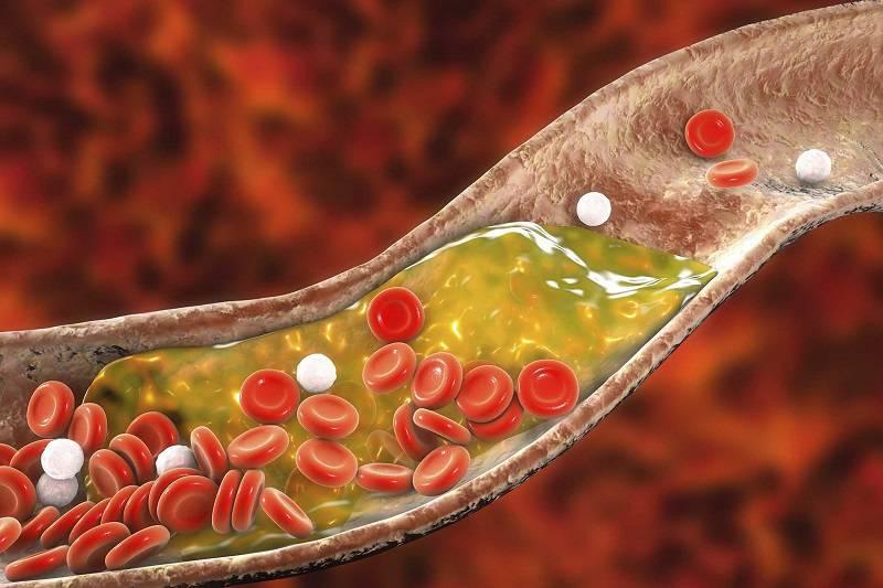 راه های درمان کلسترول و تری گلیسیرید