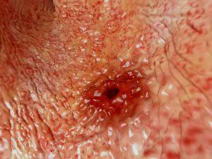زخم معده از علل درد قفسه سینه و پشت با هم