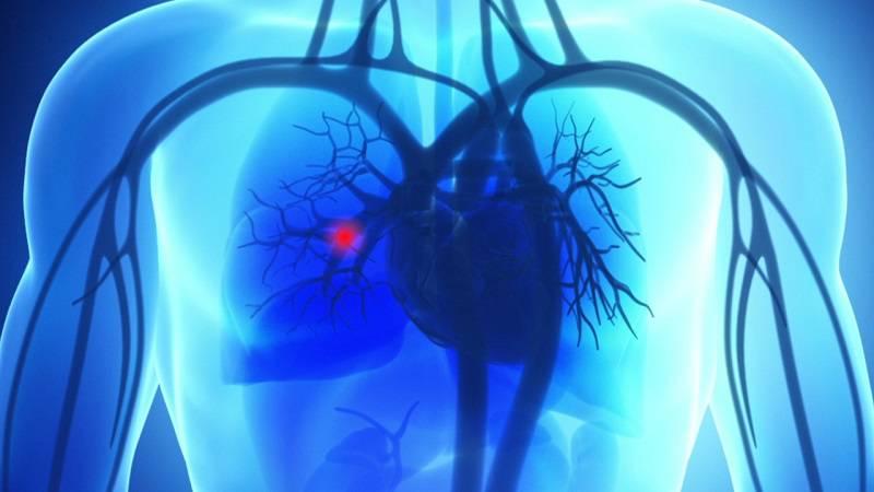 آمبولی ریه از علل درد قفسه سینه و پشت با هم