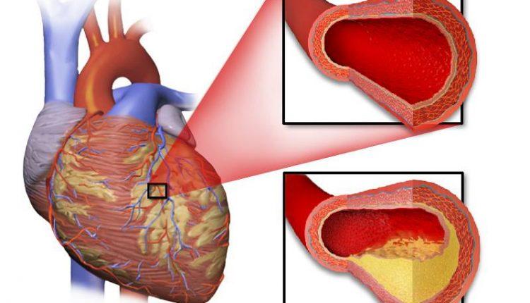 درمان بیماری ایسکمیک قلبی