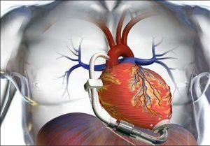 نارسایی قلبی و علت آن