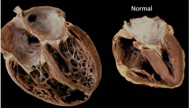 کاردیومیوپاتی قلب