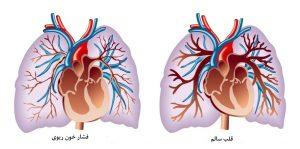 فشار خون بالای ریه ها