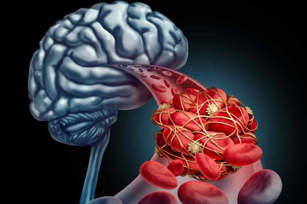 مجرای قلب باز و سکته مغزی
