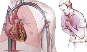 انواع آنژین قلبی و داروی ضد آنژین