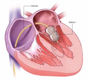 کاتتریزاسیون مداخله ای (والولوپلاستی با بالون)