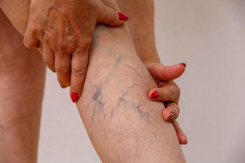 درمان درد واریس به چه صورت است