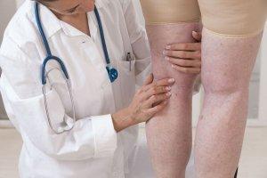 پلتیسموگرافی انسدادی
